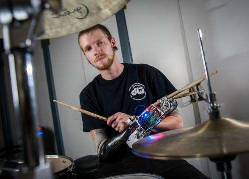 Robotic prosthesis turns drummer into a three-armed cyborg