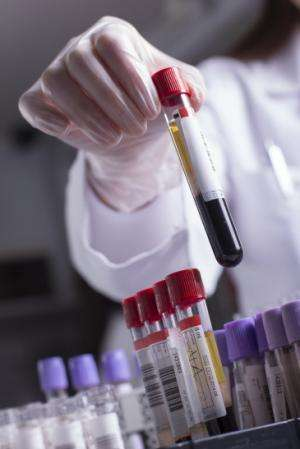 Simple blood test could be used as tool for early cancer diagnosis