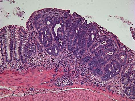 Researchers at IRB discover a key regulator of colon cancer