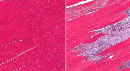 Researchers discover a key to making new muscles