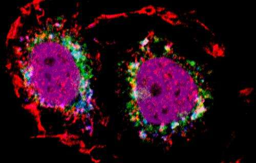 Scientists discover new mechanism which causes the spread of breast cancer