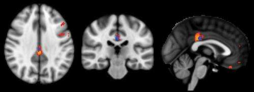 MRI technique detects evidence of cognitive decline before symptoms appear