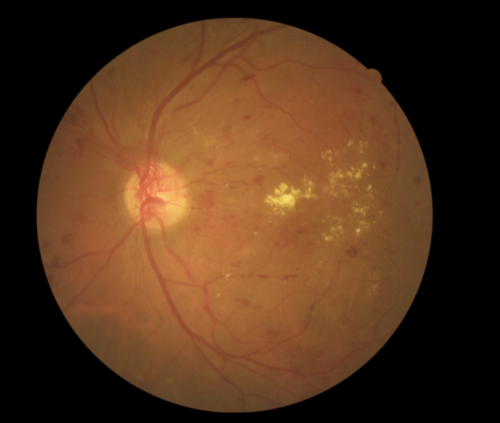 Researchers aiming to improve global standards for detection of leading cause of blindness