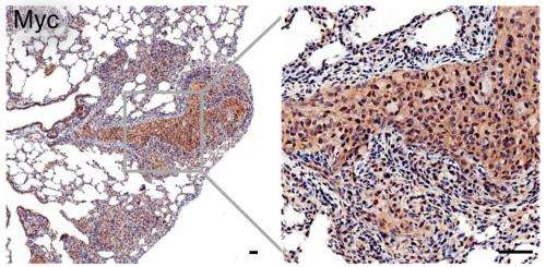 Scientists develop powerful new animal model for metastatic prostate cancer
