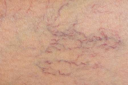 Study highlights preferred treatment for varicose veins