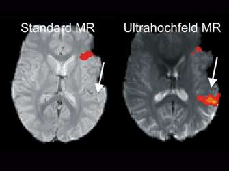 Ultra-high-field MRI reveals language centres in the brain in much more detail
