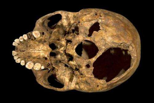 An undated handout picture released on February 4, 2013 from the University of Leicester shows the base of the skull of king Ric