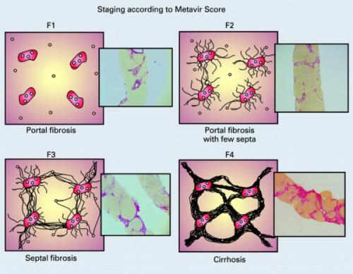 Researchers model the mechanics of cells' long-range communication