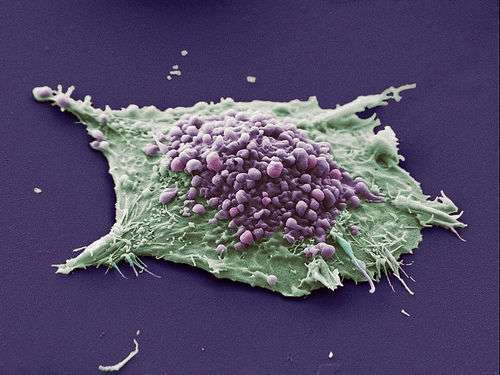 Scientists pinpoint protein that could improve small cell lung cancer therapies