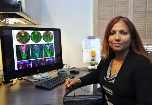 Researchers identify chemical compound that decreases effects of multiple sclerosis