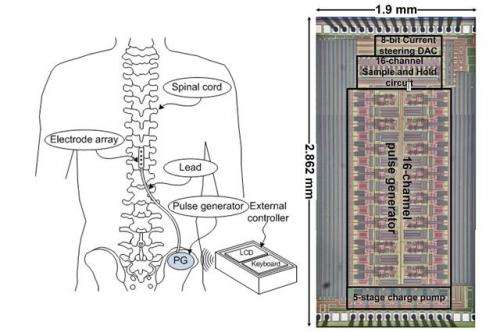 New technology reduces size of spinal stimulator implants