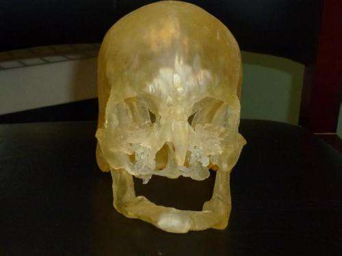 Researchers use 3-D printing to guide human face transplants