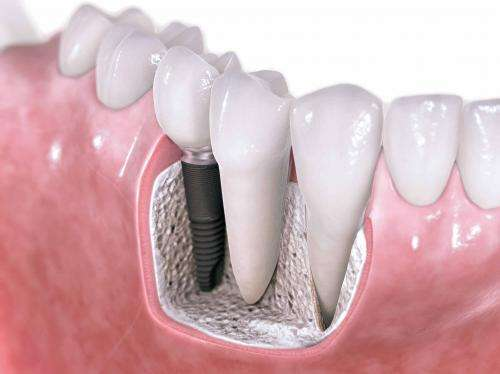 New materials for better, stronger and cheaper dental implants