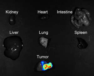 A fluorescent nanoprobe could become a universal, noninvasive method to identify and monitor tumors