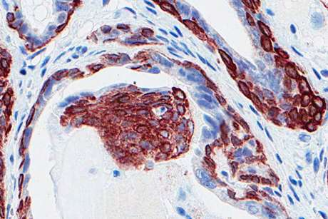 A gene family that suppresses prostate cancer