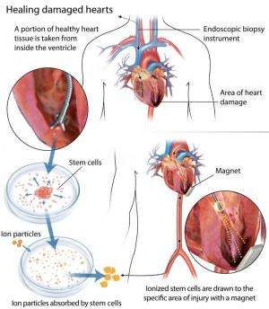 An attractive solution for heart repair