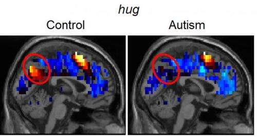 Brain representations of social thoughts accurately predict autism diagnosis