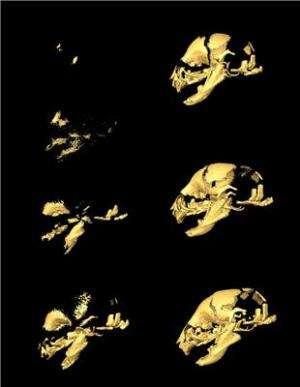 Brain size influences development of individual cranial bones