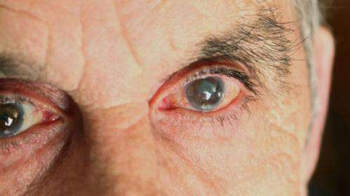 Breakthrough in cataract diagnosis and treatment