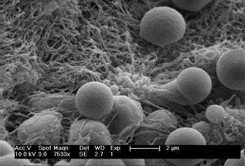 Clot-building nanoparticles raise survival rate following blast trauma