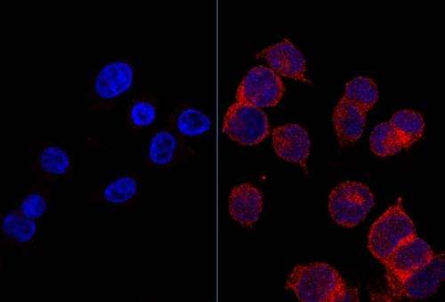Discovery of a mechanism that makes tumor cells sugar addicted