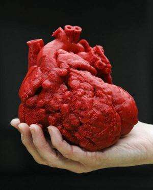 Doctor uses printed 3D heart to assist in infant heart surgery