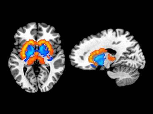 Eating habits, body fat related to differences in brain chemistry
