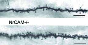 Esearchers link gene to increased dendritic spines – a signpost of autism