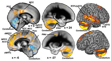 Family problems experienced in childhood and adolescence affect brain development