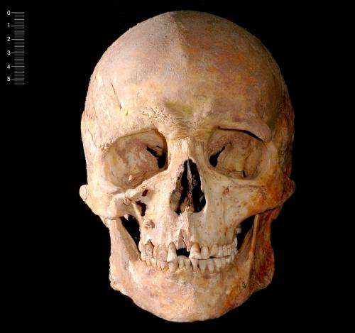 Spanish hunter-gatherer had blue eyes and dark skin