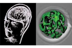 How alzheimer's peptides shut down cellular powerhouses