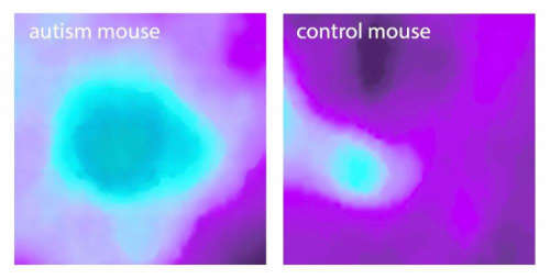 Insular cortex alterations in mouse models of autism