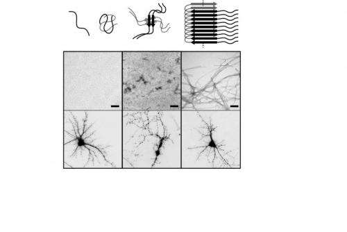 Laying siege to beta-amyloid, the key protein in Alzheimer's disease