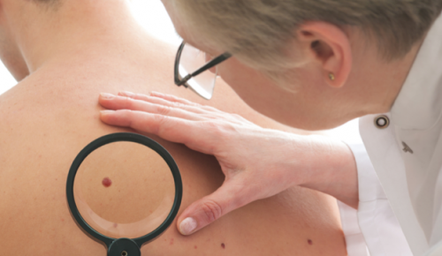 Moles can quadruple risk of developing melanoma
