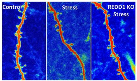New finding suggests a way to block stress' damage