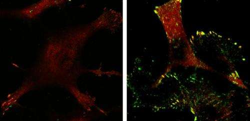 p53 cuts off invading cancer cells