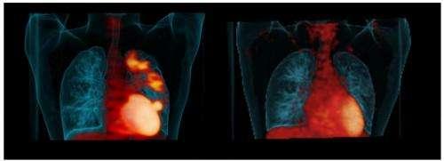 PET scans help identify effective TB drugs, says Pitt School of Medicine study