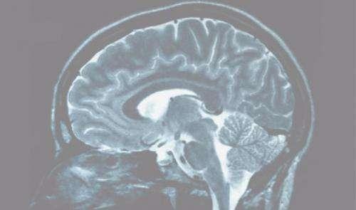Positive, negative thinkers' brains revealed