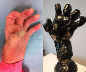 Rodin's hand sculptures diagnosed as part of exhibit