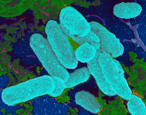 Scientist finds link between antibiotics, bacterial biofilms and chronic infections