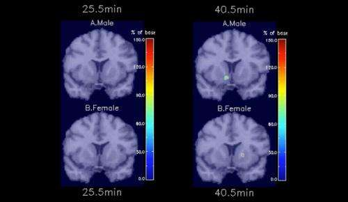 Smoking lights up brain's response differently in men and women