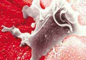 STD may heighten risk of prostate cancer
