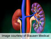 Triple drug combo benefits lupus nephritis