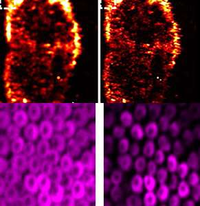 Unwanted side effect becomes advantage in photoacoustic imaging