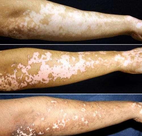 Vitiligo treatment holds promise for restoring skin pigmentation