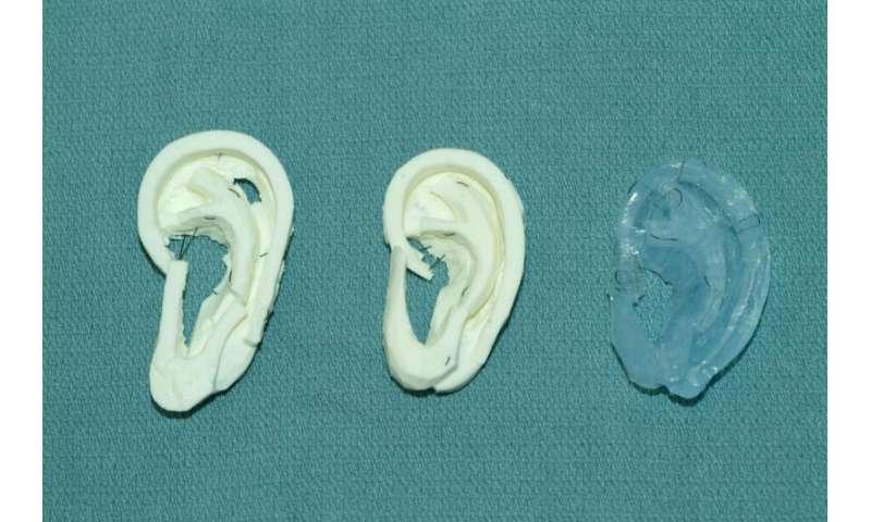 3-D printing techniques help surgeons carve new ears