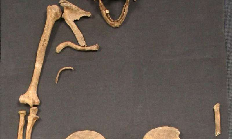 Ancient skeleton shows leprosy may have spread to Britain from Scandinavia