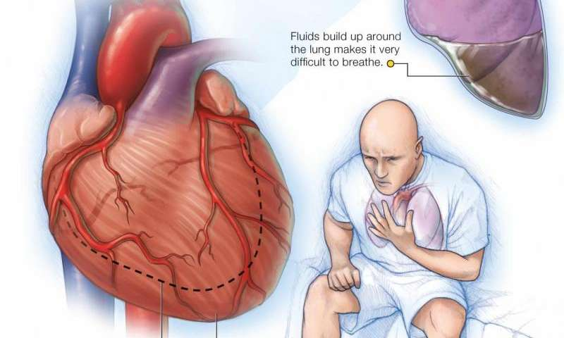 Common medication for heart failure patients does not increase activity level