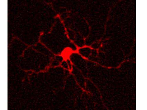 Fatal uncoupling in the epileptic brain