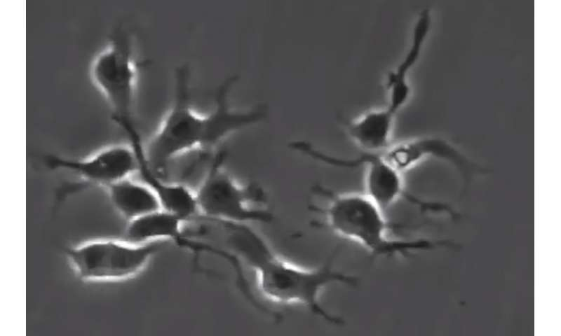 Image-tracking technology allows scientists to observe nature vs. nurture in neural stem cells